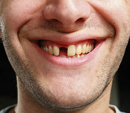 Kuo pakeisti netektą dantį?