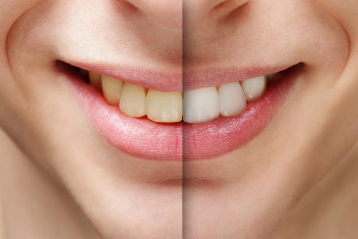 NAUJIENA - Dantų balinimas BEYOND SISTEMA!