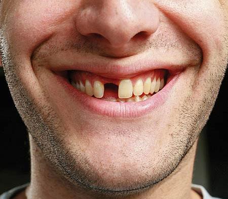 Kuo pakeisti netektą dantį? Kuo pakeisti netektą dantį?